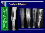 Fracture bifocale