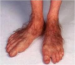 EWW Nasty Feet on Pinterest | Long Toenails, Toenails and Toe via Relatably.com