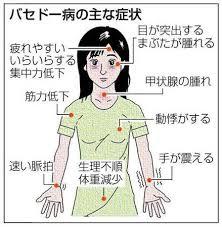 「バセドー氏病」の画像検索結果