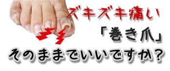 「巻き爪」の画像検索結果