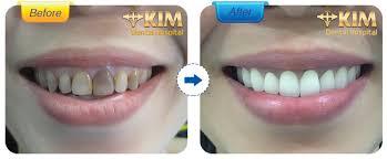 Kết quả hình ảnh cho trồng răng sứ ở đâu tốt