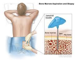 mashing myeloma bone marrow biopsy aspiration ouch bone marrow biopsy aspiration ouch