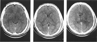 brain scan of trauma
