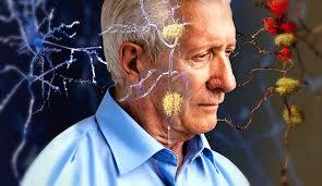 Imagini pentru alzheimer