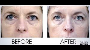 Anti-Aging Series: Part 2: <b>Peptides</b>! - YouTube
