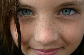 Image result for Natural treatments for freckles and skin blemishes