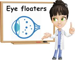 Image result for eye floaters