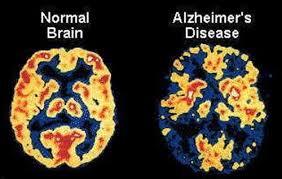 Image result for bệnh lẫn ở người già
