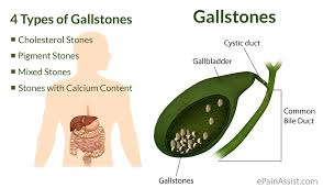 Image result for gallstones