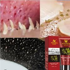 MeiYanqiong <b>Volcanic</b> Mud <b>Deep Cleansing</b> purifying peel off Black ...