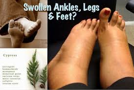 Essential Oils For Swollen Ankles, Legs and Feet | Homeopathic ... via Relatably.com