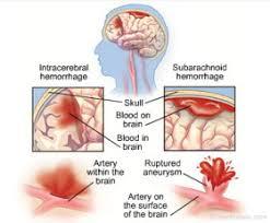 pengobatan penyumbatan pembuluh darah di kepala