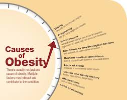 obesity essays  child obesity causes  research paper outline on    obesity essays