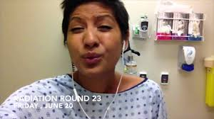 breast cancer radiation round burns and side effects