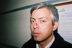 ... Donald Segovia, el dirigente nacional de la multisindical, Marcelo Rojas Cruz permanece en delicado estado de salud y bajo observación médica. - marcelo-rojas-2