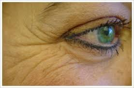 Image result for eye wrinkles