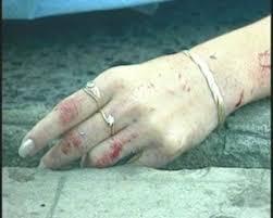 Resultado de imagen para Hombre asesina a su concubina y luego se suicida