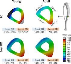 <b>Cortical</b> bone adaptation to a moderate level of mechanical loading ...
