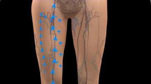 <b>Varicose veins</b> - NHS
