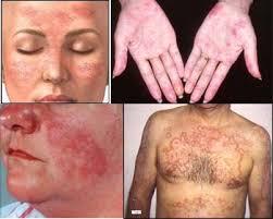 Cara Cepat Menyembuhkan Penyakit Lupus