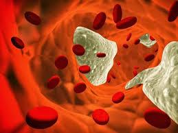 Resultado de imagen de colesterol