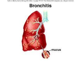Cara mengobati bronkitis kronis
