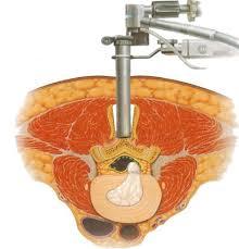 「腰椎椎間板ヘルニア」の画像検索結果
