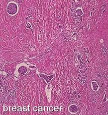 Stages of <b>Breast</b> Cancer and Disease Progression - Moose and Doc