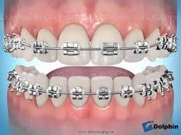 """Résultat de recherche d'images pour """"Orthodontie définition"""""""
