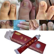 <b>Nail</b> Fungus <b>Treatment</b> / Onychomycosis Paronychia / Anti Fungal ...