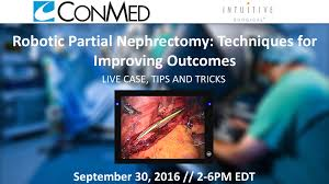 video library robotic partial nephrectomy techniques for robotic partial nephrectomy techniques for improving outcomes live case tips tricks ii