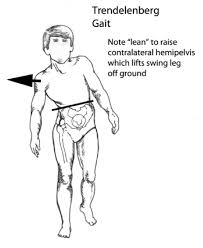 walking disorders how nerve and joint injuries change gait the patient leans to the side of weakness to use the torso to pull the opposite hip up while walking to prevent the