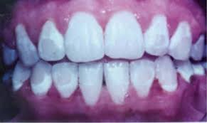 www.imjustsayindamn.blogspot.com, glue stains after braces on teeth