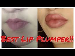 Best <b>Lip Plumper</b> | CandyLipz Review and Demo - YouTube