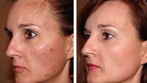 Image result for enlarged pores