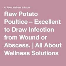 Image result for grated potato poultice