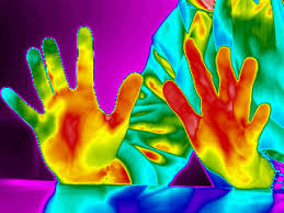 Image result for Thermography pictures ICI