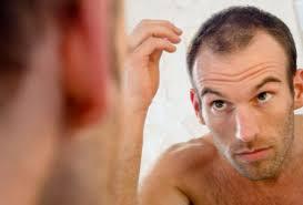 Облысение у мужчин лечение стоимость