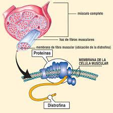 Resultado de imagen de distrofia muscular de duchenne