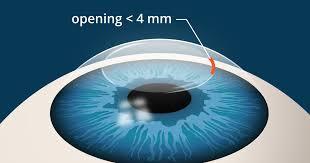 SMILE <b>Eye</b> Surgery: What's Different Than LASIK?