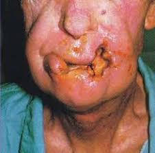 Image result for human disease cancer