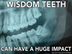 Dental Memes on Pinterest | Dentists, Dental Humor and Dental via Relatably.com