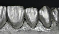 Пин от пользователя iowa на доске tooth | <b>Dental</b> veneers, <b>Dental</b> ...