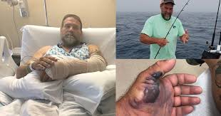 Flesh-eating bacteria infects Florida man fishing off coast of Palm ...