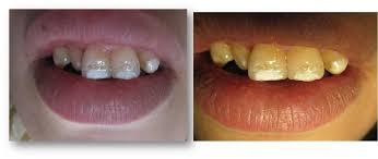 """Résultat de recherche d'images pour """"fluorose dentaire"""""""