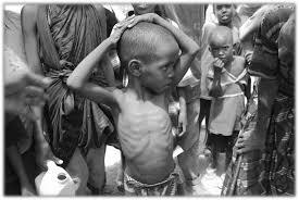 Image result for Starving 3rd world children