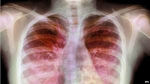 Image result for cystic fibrosis