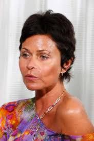 Irina Beller mit der genähten Wunde über dem Auge. Philippe Rossier - Irina-Walter-Beller