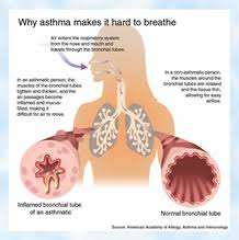 asthma research papers custom writtenasthma
