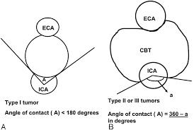 carotid body tumors objective criteria to predict the shamblin figure